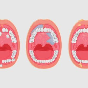 Silent-Signs-of-Oral-Cancer-You-Might-Ignore