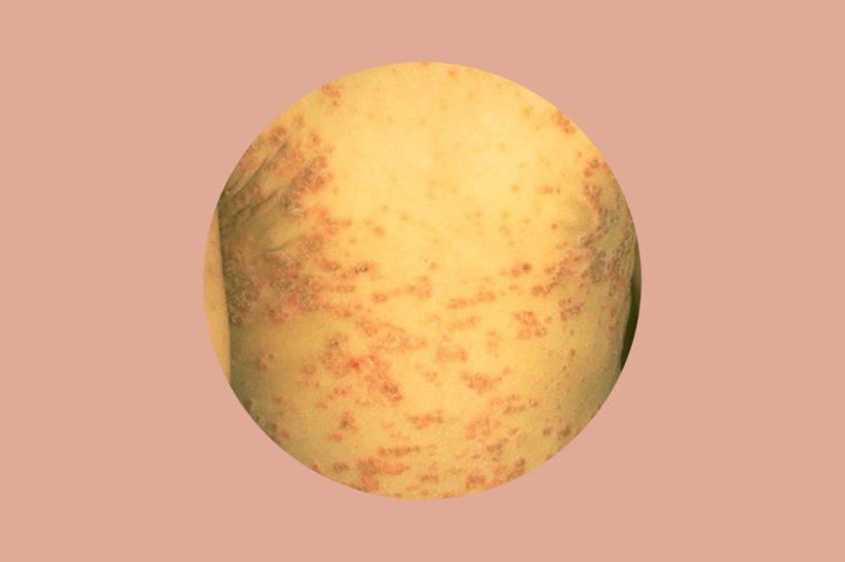 Guttate psoriasis on a man's torso.
