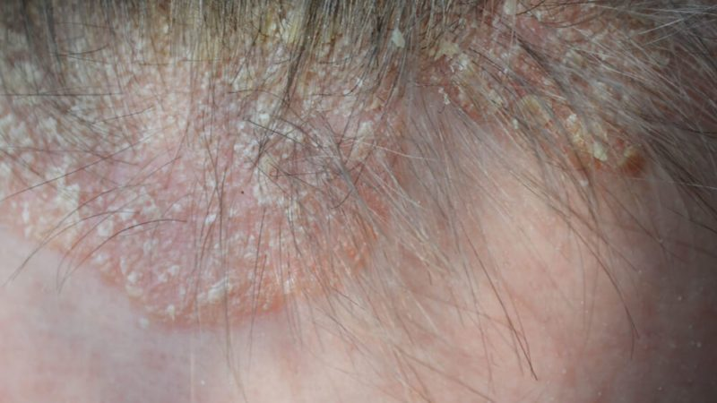 psoriasis on the hair, dermatological diseases, skin problems