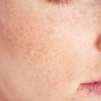 7 Skincare Rules Everyone With Freckles Should Know