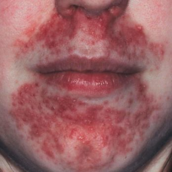 Here's How You Should Treat Perioral Dermatitis, According to Dermatologists