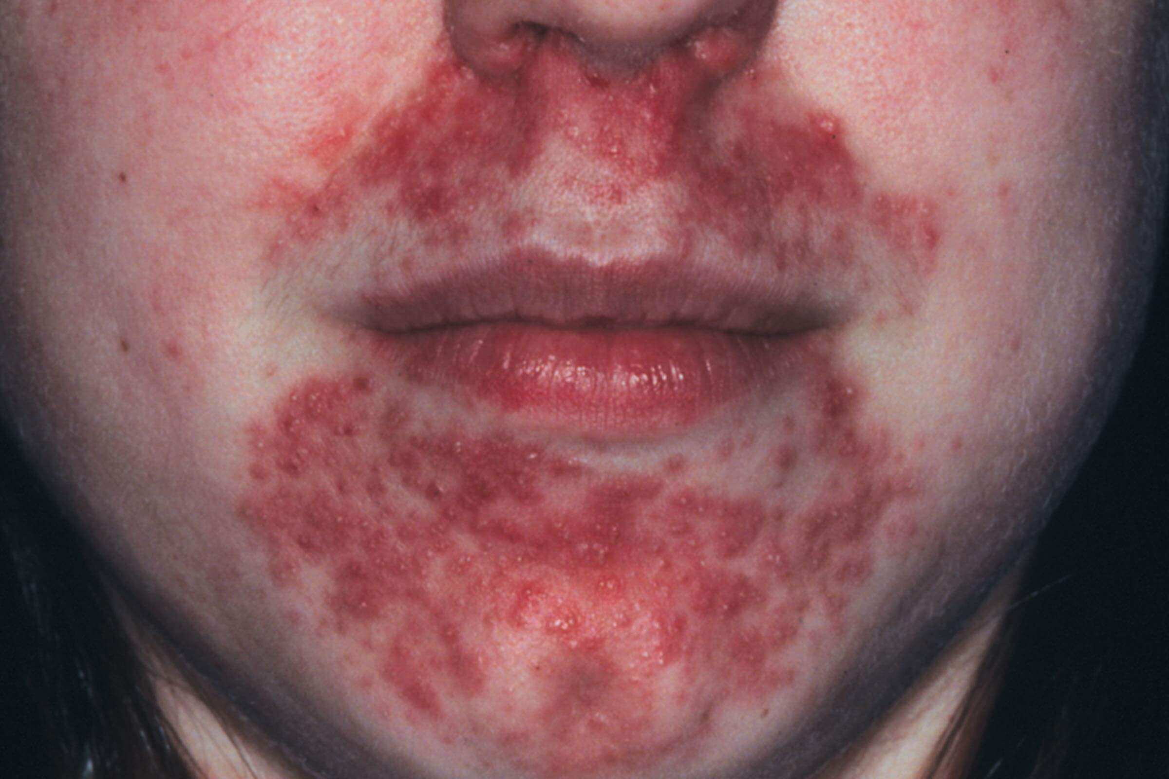 Perioral Dermatitis Here S How To Treat It The Healthy