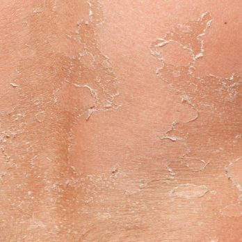 What Your Peeling Skin Is Trying to Tell You