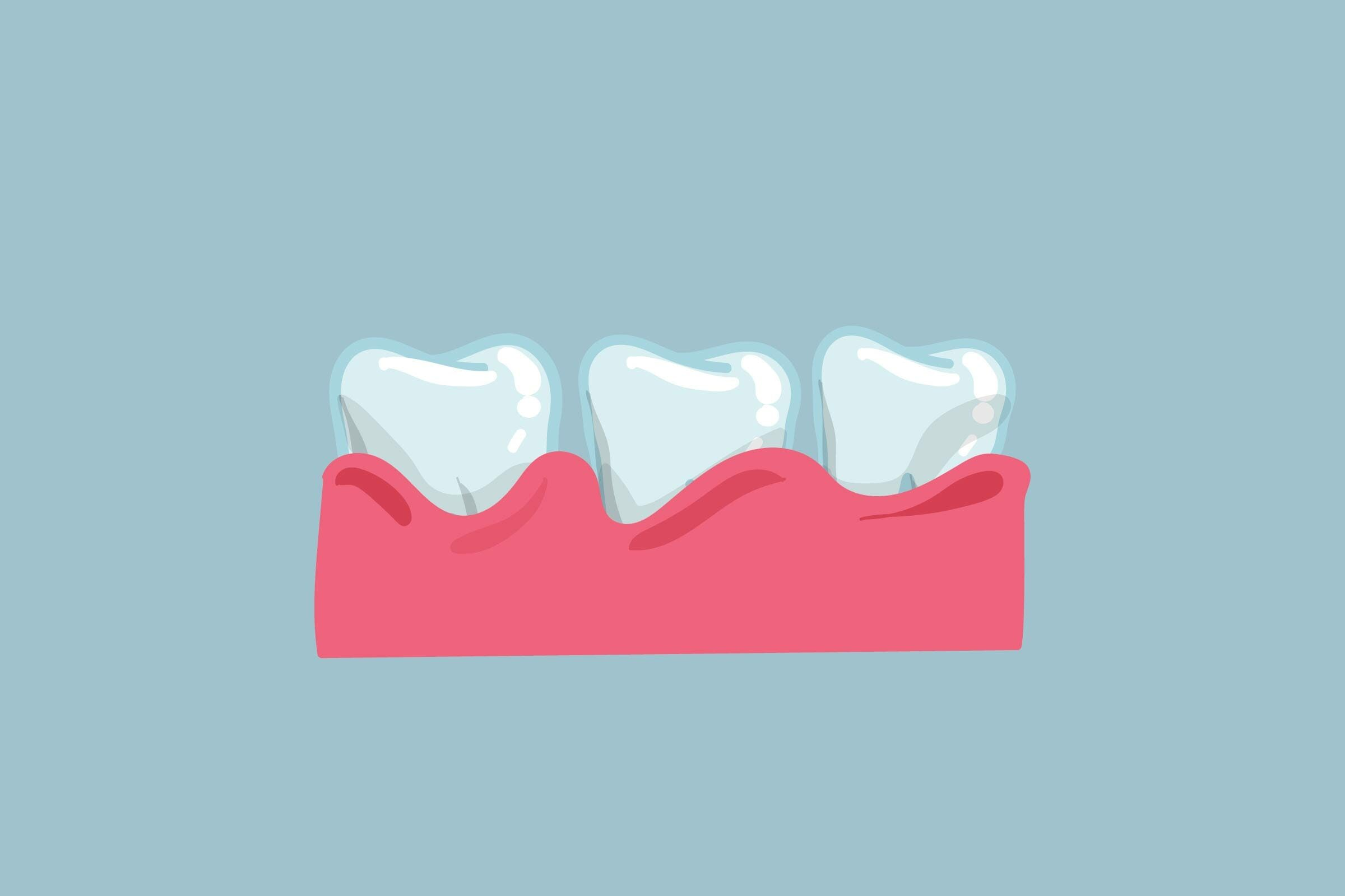 gum disease inflamed teeth