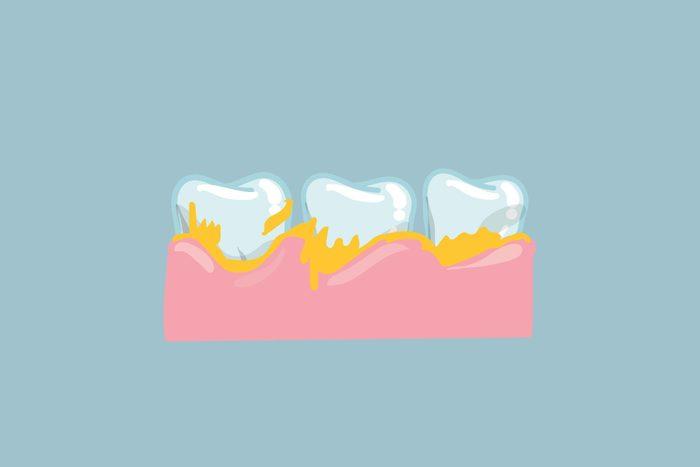 teeth with plaque buildup