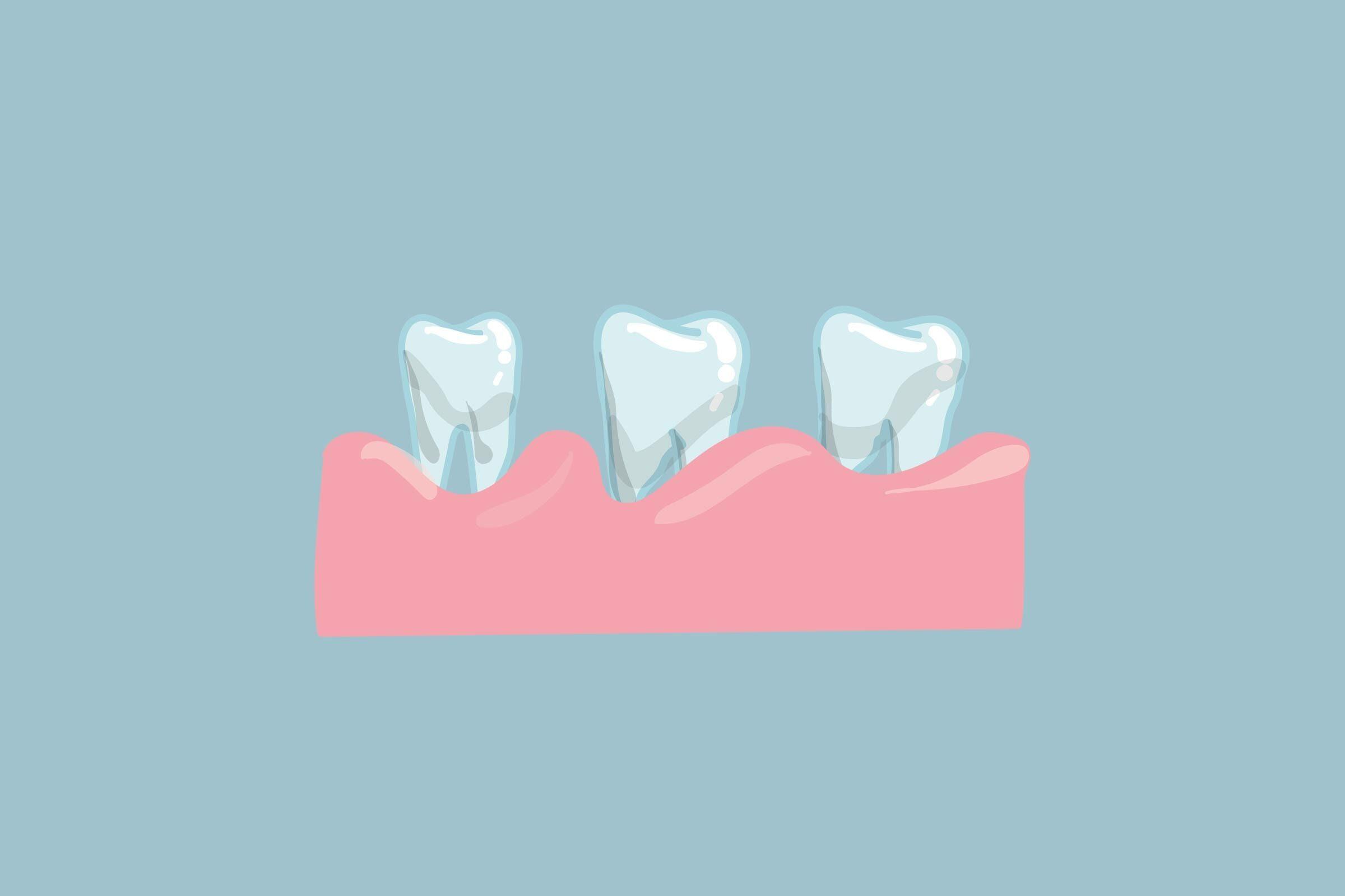 teeth bone loss