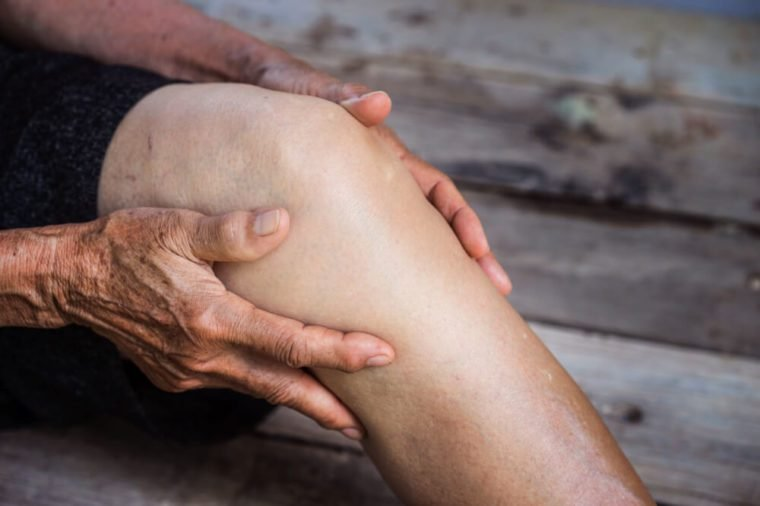 An older person with osteoarthritis holding sore knee