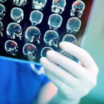 15 Things Neurologists Do to Prevent Alzheimer's Disease