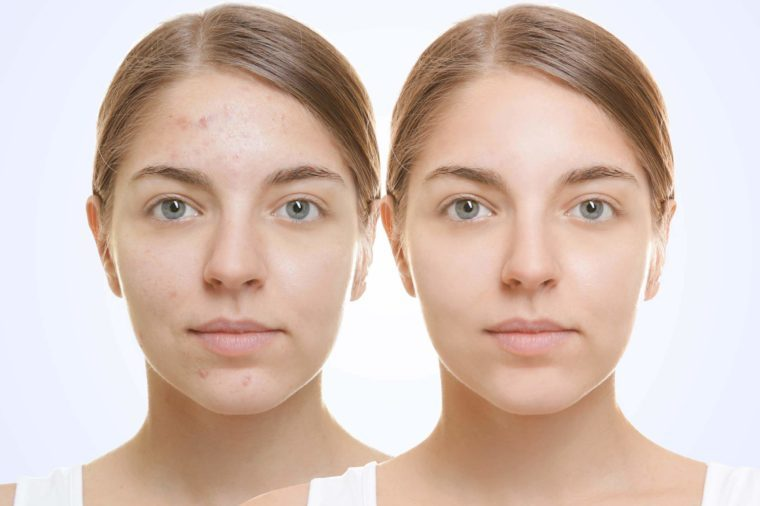 Two pictures of same young woman with and without acne