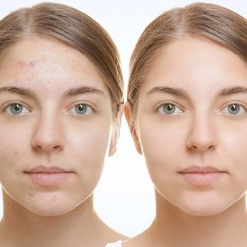 9 Reasons Glycolic Acid Is the Miracle Your Skin Has Been Waiting For