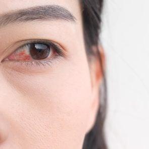 woman conjunctivitis pink eye