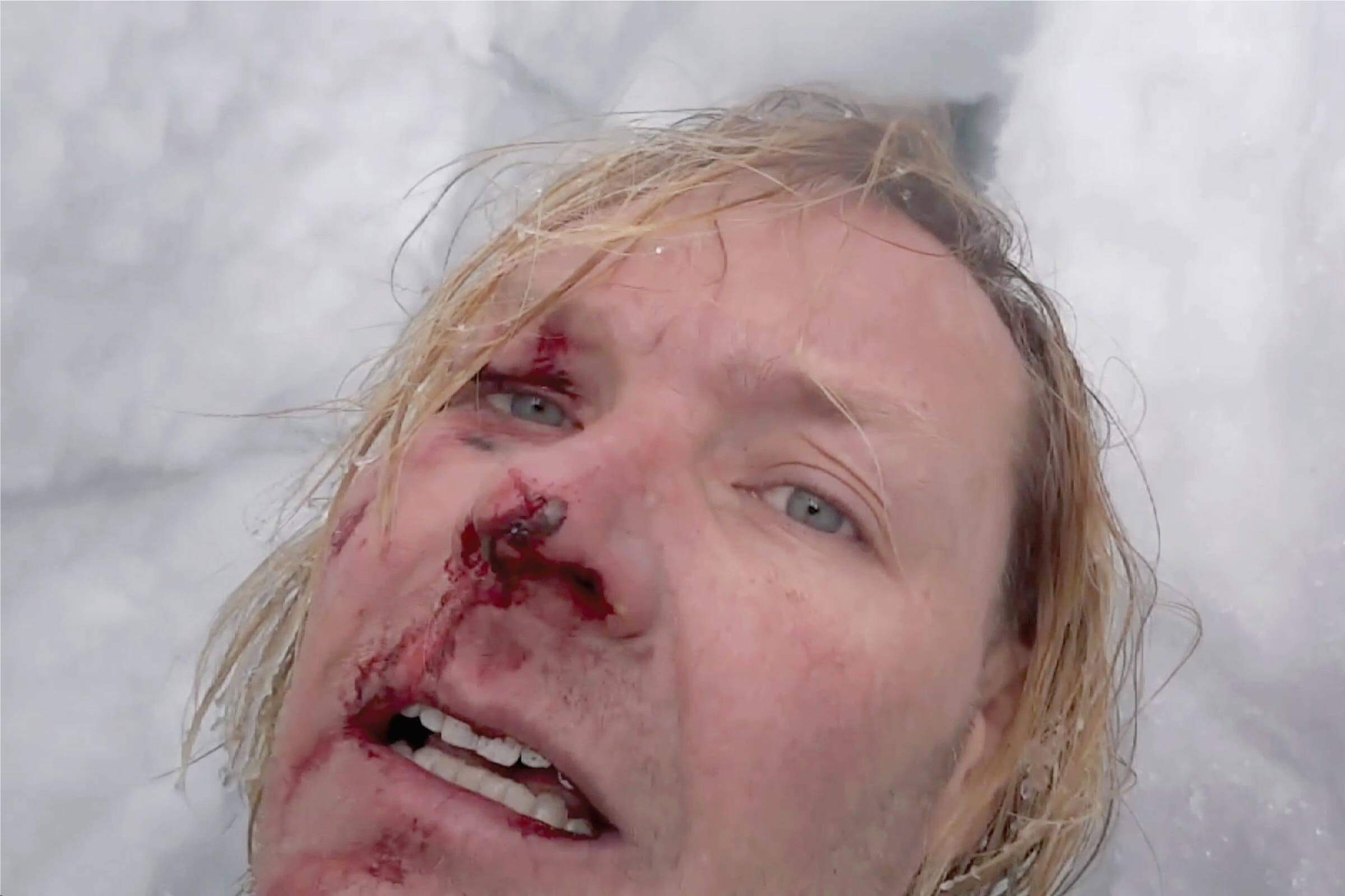 John All's face after falling