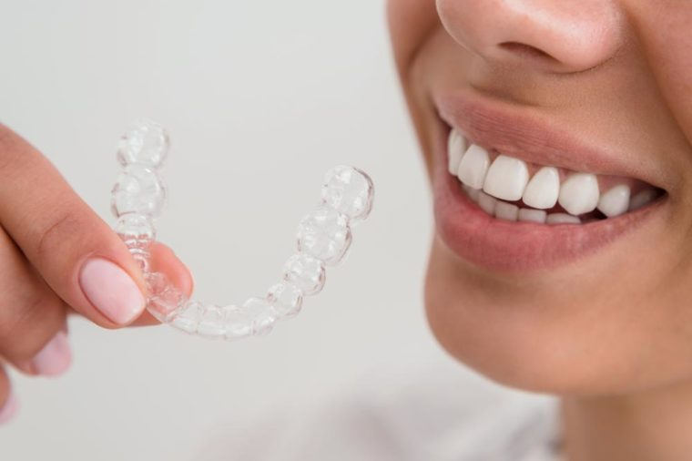 Woman with a beautiful smile holding a transparent mouth guard.