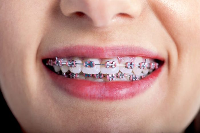 Young woman with brackets and braces on teeth.