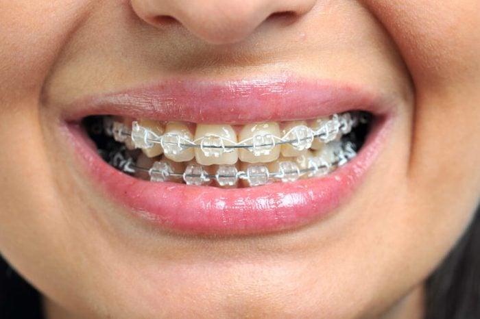 Ceramic and metallic braces on a woman's teeth.