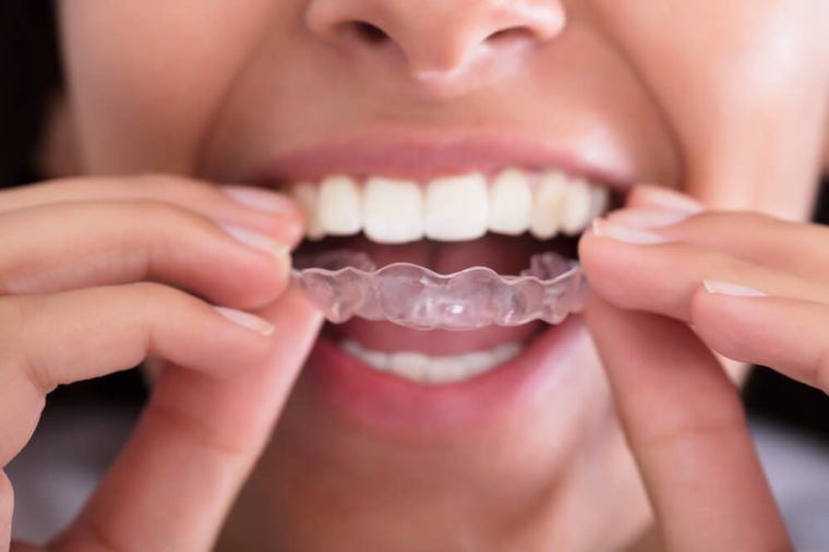 Woman putting a transparent aligner like Invisalign in her mouth.