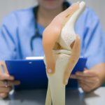 15 Things You Need to Know About Knee Replacement