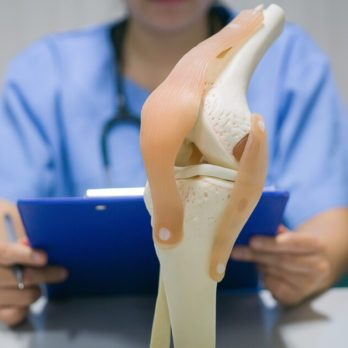 16 Things You Need to Know About Knee Replacement