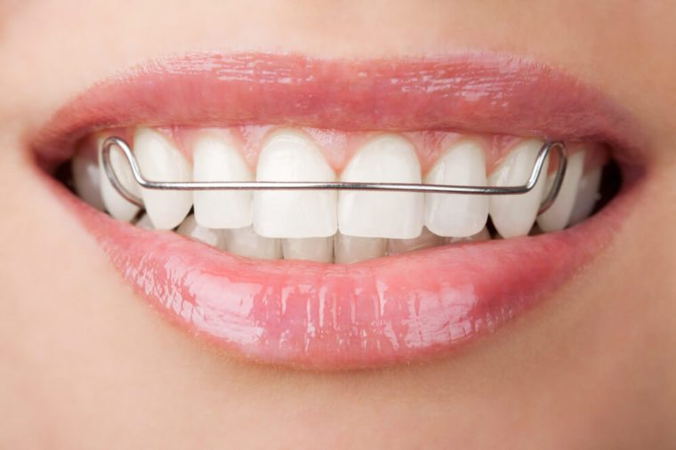 Woman's teeth with retainer.