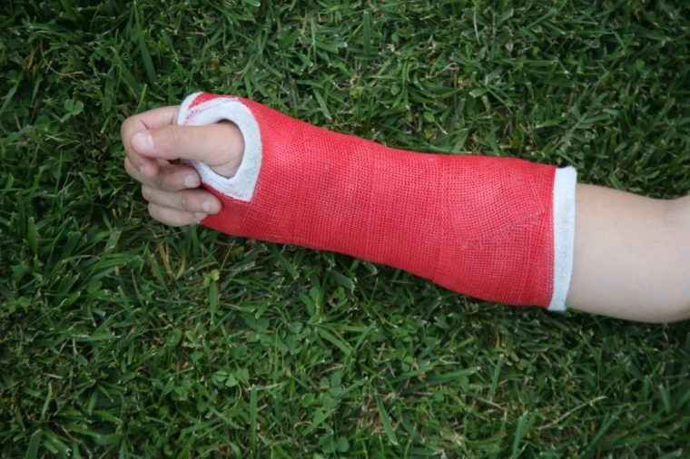 Red wrist arm and hand cast