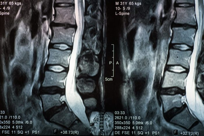 MRI of human spine with a disc herniation.