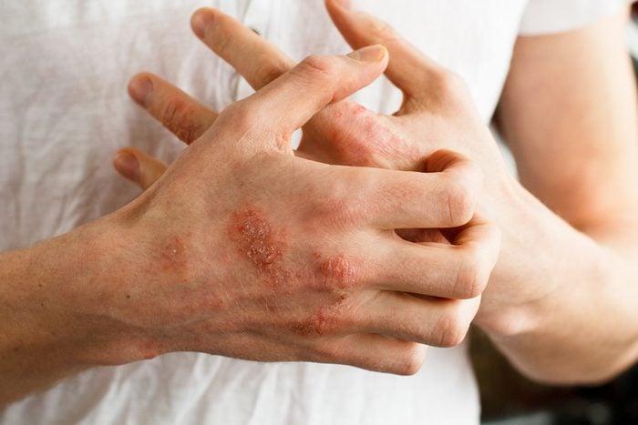 eczema on hand
