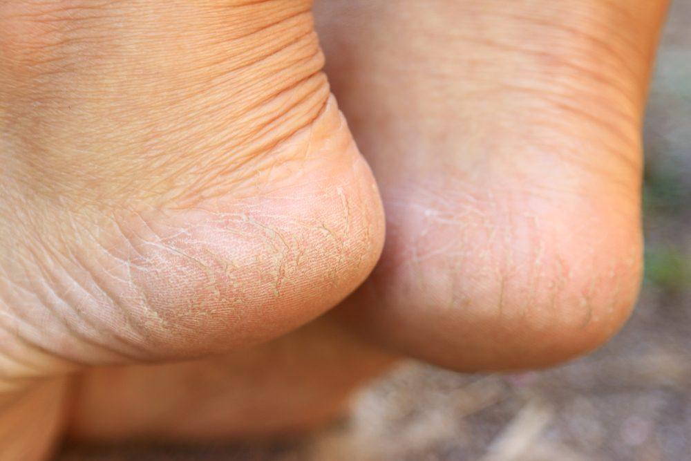 Cracked heel on woman's foot