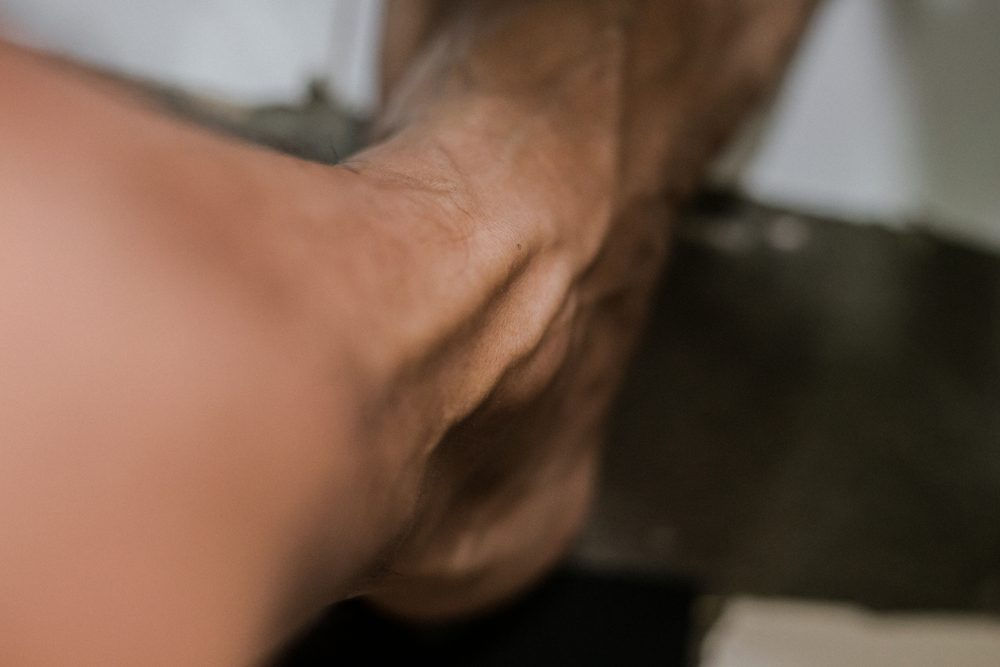 blood vessel on man's ankle