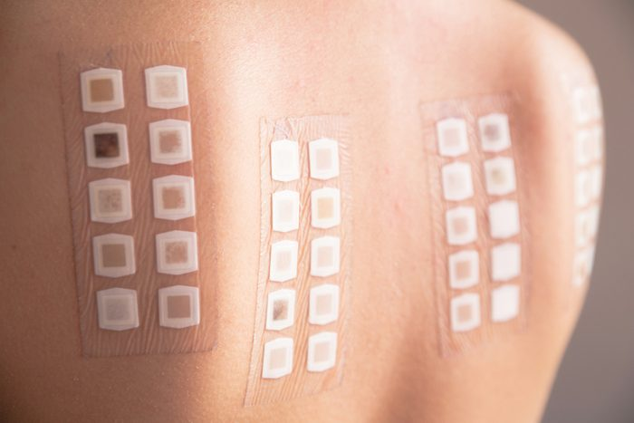 Alergy patch test on the back of a young woman