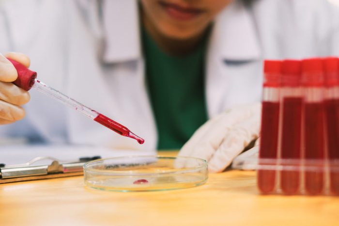 Lab technician holding a blood tube test.