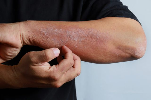 Man scratching an allergic rash on the skin of his arm.