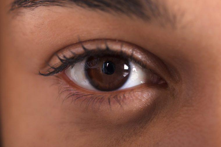 Close-up image of a dark brown eye.