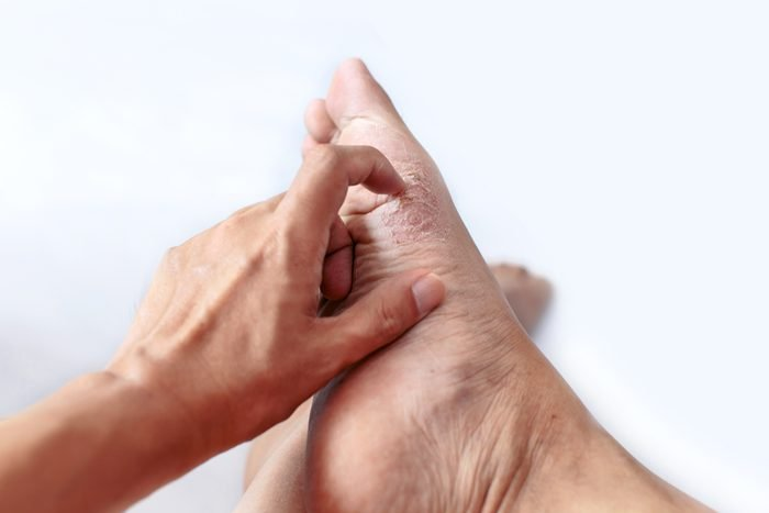 finger scratching at athlete's foot