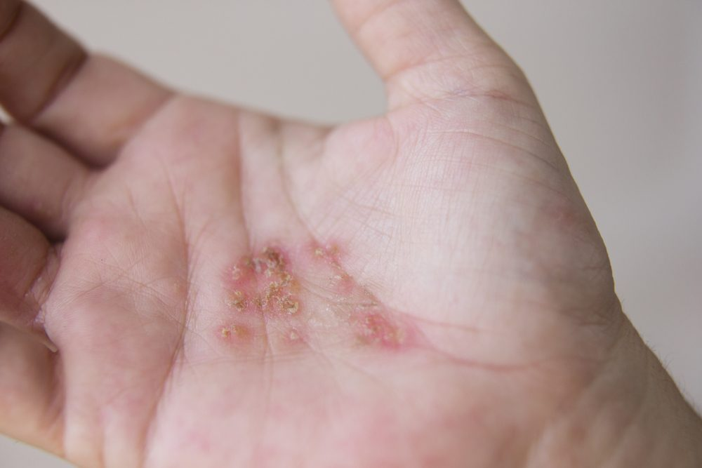 Hands of an adult woman with contact dermatitis