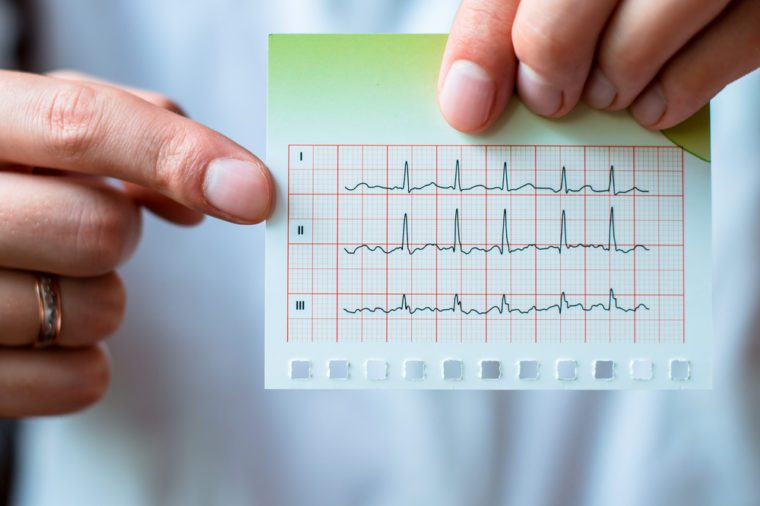 Electrocardiogram, ecg in hand, palm of a doctor.