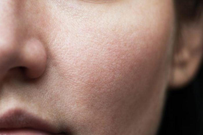 Closeup of nose and cheek.