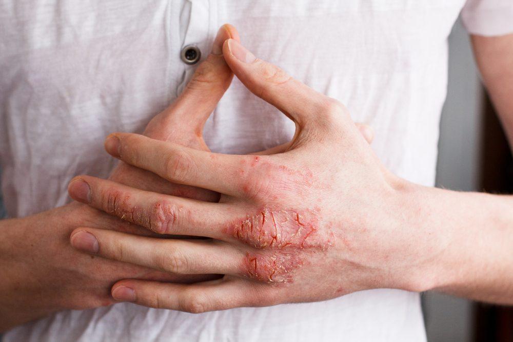 psoriasis or eczema on hand