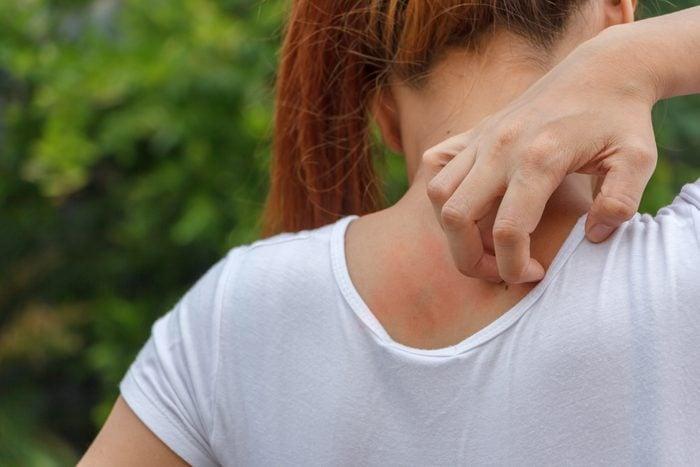 Women scratching itching back