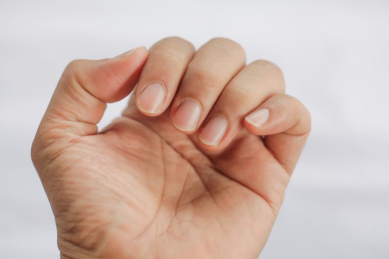 Closeup of a man's finger nails.