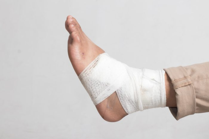 Foot with sprained ankle wrapped with bandage for recovery.