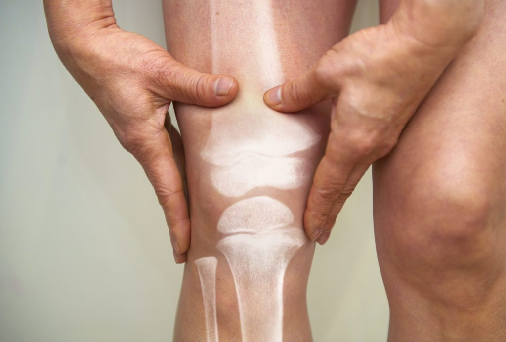 cartilage in knee and joints concept