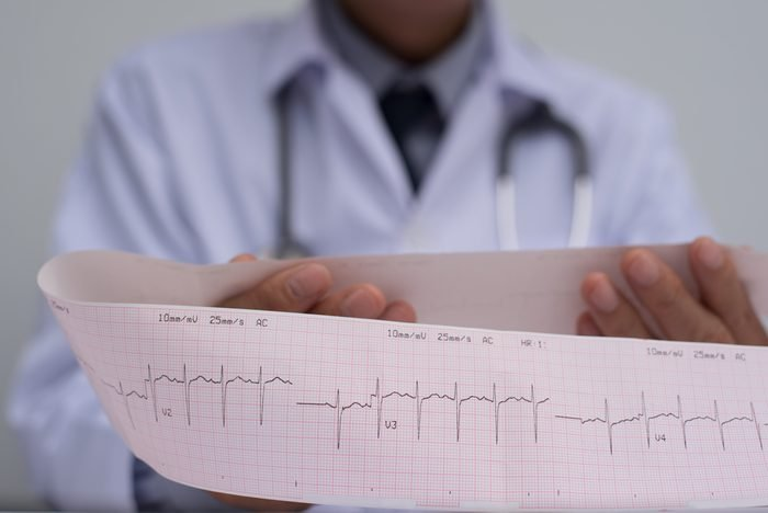 Close up of male cardiologist doctor or medical student in white coat with stethoscope holding and reading ekg paper print report of heart disease patient