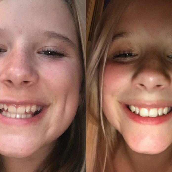 How I Straightened My Teeth Without Braces