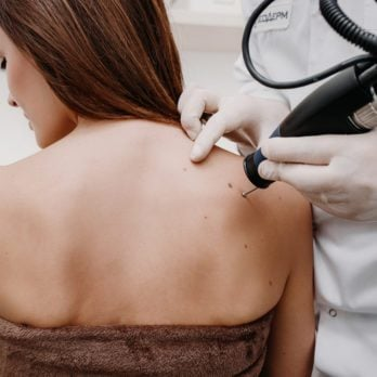 Why These 12 States Need to Take Skin Cancer Risk More Seriously
