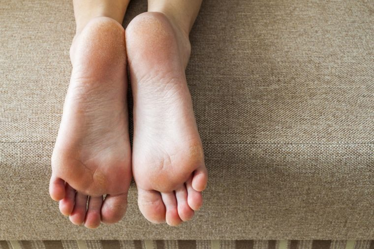 How to Get Rid of Corns and Calluses Naturally | The Healthy