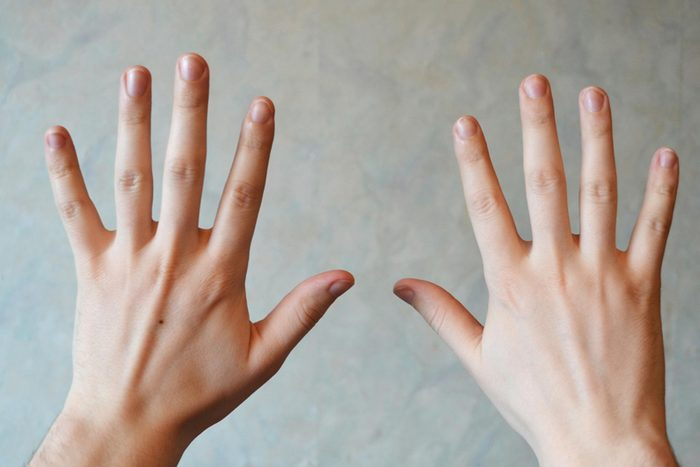 hands with fingers spread out