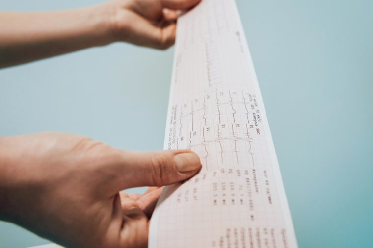 person holding a printout of a heart test