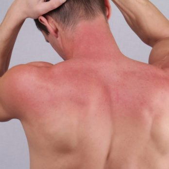 Already Sunburnt? Here's What Dermatologists Would Do