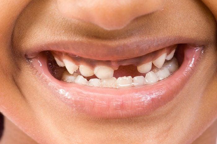 Cute girl showing her missing milk teeth, isolated on white background Mumbai Maharashtra, India, South East Asia.