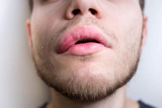 swollen lips
